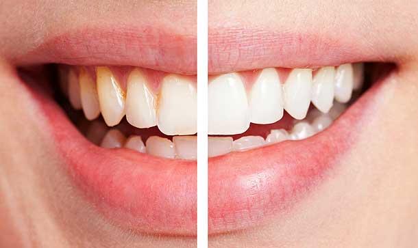 лазерное отбеливание зубов в минске